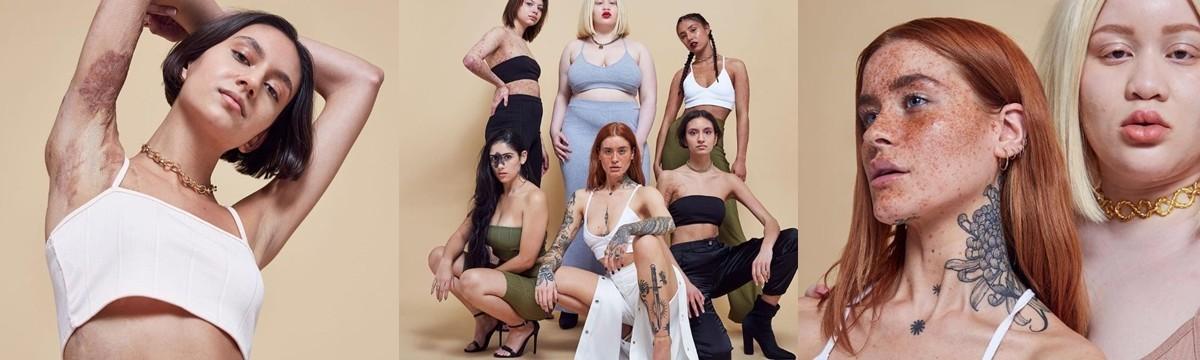 bőrhiba modell kampány
