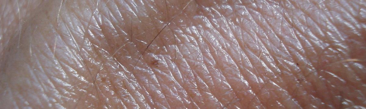 Napégéstől a melanomáig – ilyen út vezet a bőrrákhoz