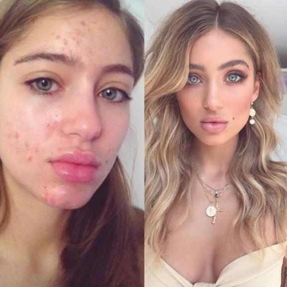 Instagram pattanás bőr trend
