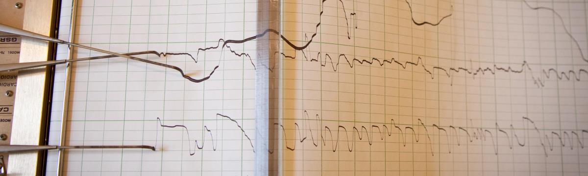 Szemrebbenés nélkül hazudtam – Kipróbáltam a poligráfot