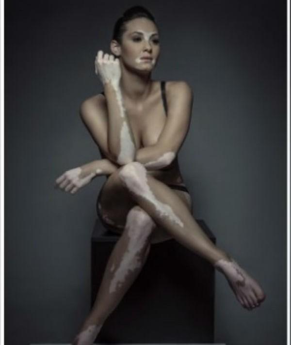 szeles-adrienn-vitiligo